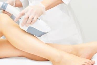 IPL Promotion Windsor - Medical Cosmetics